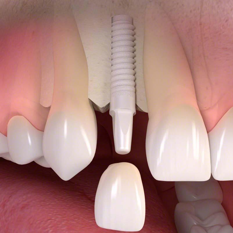 Iplantat/Implantate - Bild 1