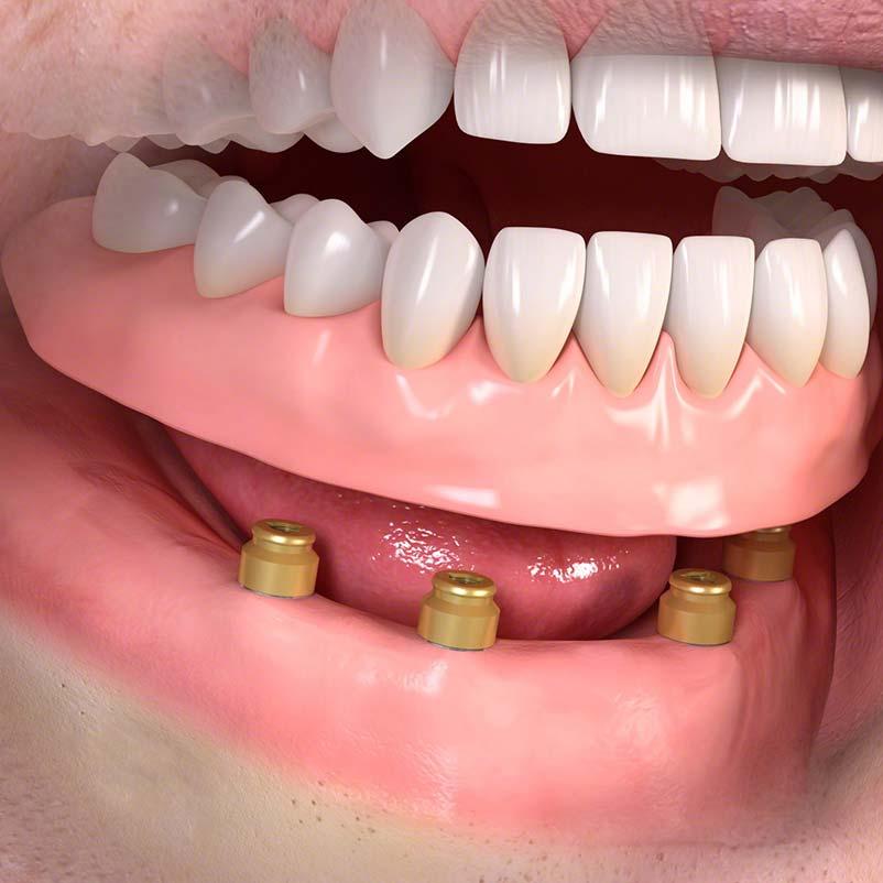 Iplantat/Implantate - Bild 2