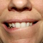 Zahn-Kosmetik