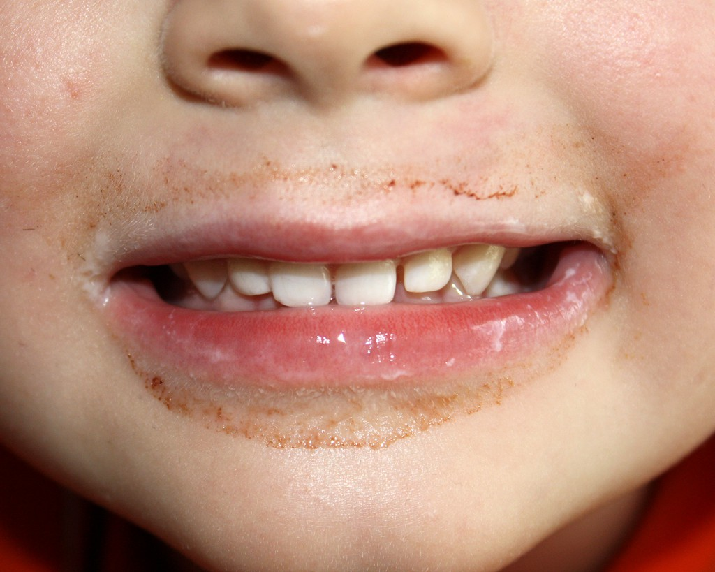 Kindermund/Zähne